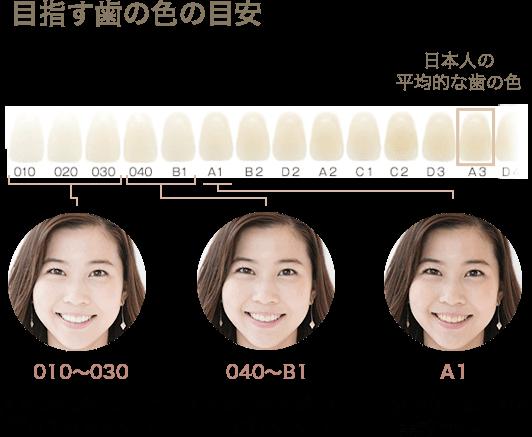 ホワイトエッセンスの目指す歯の目安